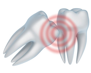 Diagram showing the problems that can arise if a wisdom tooth extraction does not take place.