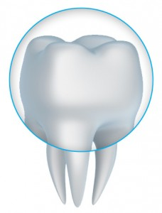Diagram of a tooth crown available in Arlington TX.
