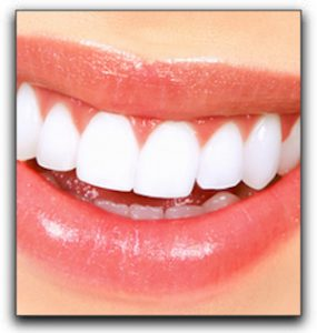 Close up photo of porcelain veneers in Grand Prairie.