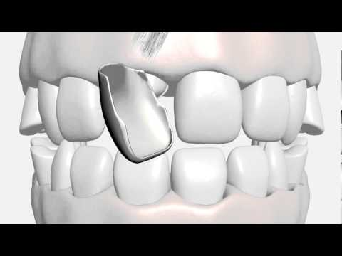 Porcelain Dental Veneers Arlington TX Dentist Near Grand Prairie