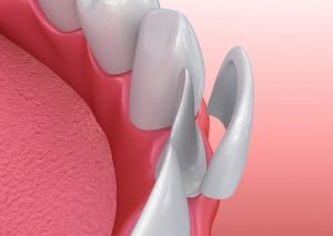 Porcelain Dental Veneers Illustration - Dr. Stephen Ratcliff Family and Cosmetic Dentistry Arlington TX
