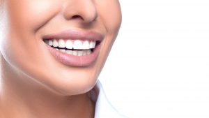 Porcelain Dental Veneers - Stephen Ratcliff Arlington TX Cosmetic Dentistry