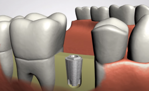 Dental Implant Placement in Jaw Bone - Stephen Ratcliff Family & Cosmetic Dentistry Arlington TX