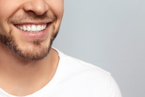 Dental Crowns Placement Process Complete - Stephen ratcliff Family & Cosmetic Dentistry Arlington TX